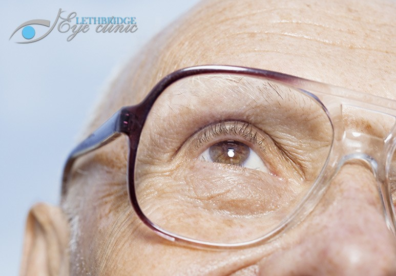Age Related Macular Degeneration Lethbridge